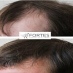 How Hair Loss Treatment For Women Is Different From Men?
