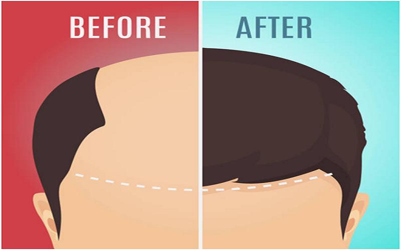 Hair Loss Treatments For Women